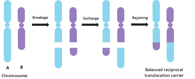 Balanced Reciprocal Translocation